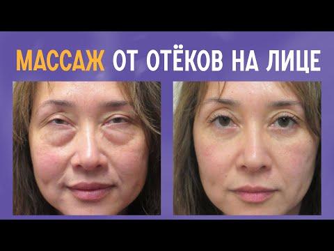 Убираем отёки на лице. Лимфодренажный массаж