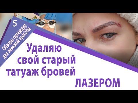 Удаление татуажа бровей. ЛАЗЕР vs РЕМУВЕР.