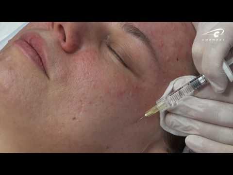 Биоревитализация техника: глаз, век, эффект.