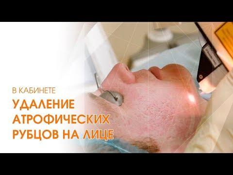 Как ИЗБАВИТЬСЯ от рубцов НАВСЕГДА / Лазерное удаление атрофических рубцов