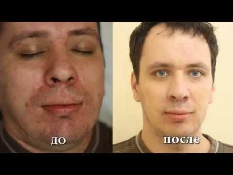 Лечение угревой сыпи ЛАЗЕРОМ / ЛЕЧЕНИЕ АКНЕ