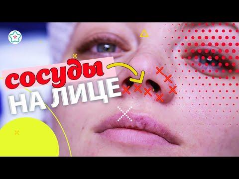 Удаление СОСУДОВ НА ЛИЦЕ лазером: до и после 👩🏻👱♀️ Сосудистая сетка на лице