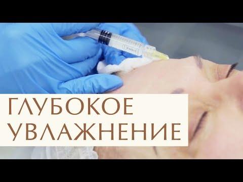 💧 Что такое биоревитализация лица, как проходит процедура. Процедура биоревитализации лица. 12+