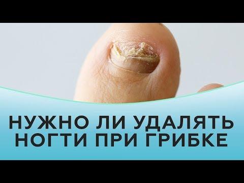 Нужно ли удалять ногти при грибке