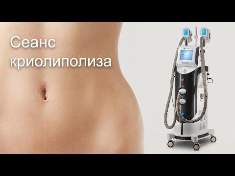 Как проводится сеанс криолиполиза. демонстрация процедуры