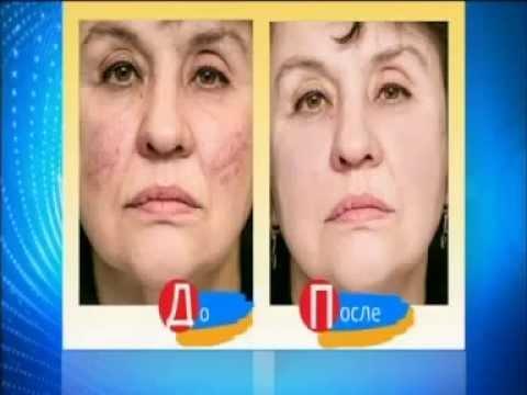 Лазерное лечение сосудистой сеточки на лице