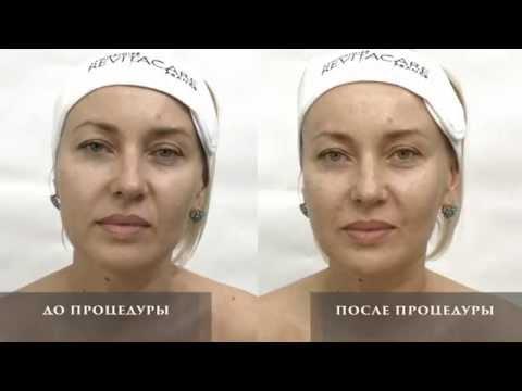 Ревитализация кожи CytoCare S Line от лаборатории REVITACARE