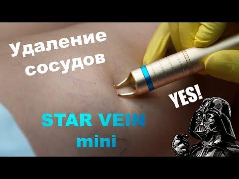 Лазерное удаление сосудистой сетки на аппарате Star Vein mini