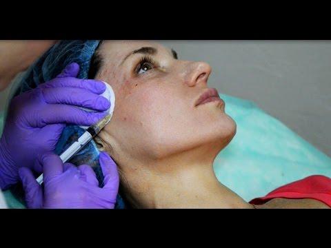 Биоревитализация лица: чего ждать