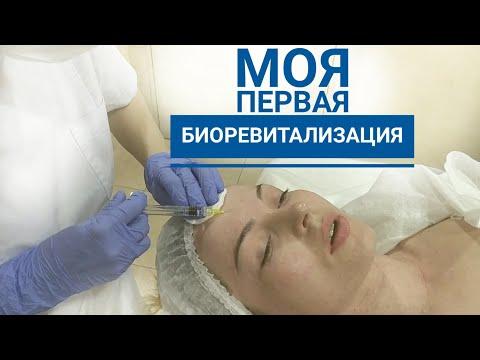 БИОРЕВИТАЛИЗАЦИЯ ЛИЦА гиалуроновой кислотой | Biorevitalization with hyaluronic acid, mesotherapy