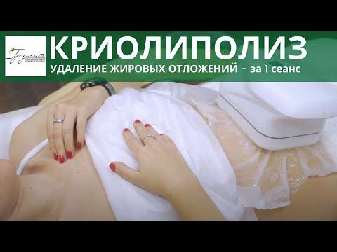 КРИОЛИПОЛИЗ - удаление жировых отложений, процедура на аппарате COCCON. Безоперационная липосакция.