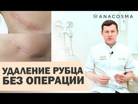 ⚠️Лазерная шлифовка шрамов ⚠️Лазерное удаление рубцов 🔥 ОПАСНО?🔥 | Миронов Андрей