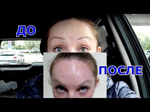 Коррекция мимических морщин ботоксом/БОТОКС/BOTOX !!!