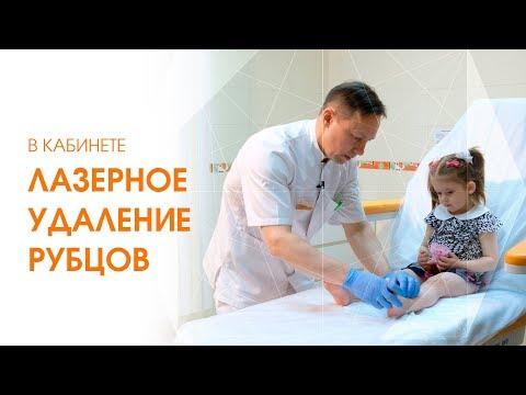 Удаление рубцов детям. Гипертрофический рубец. Процедура лечения рубцов [Линлайн Сеть клиник]