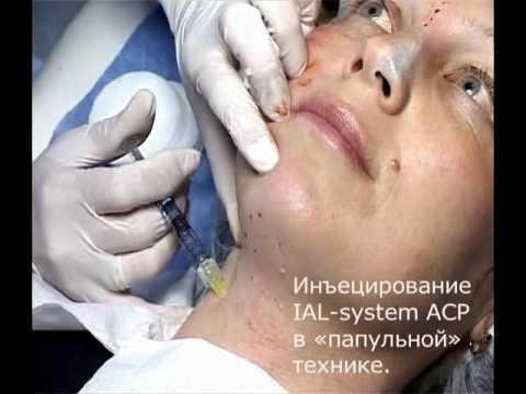 Биоревитализация препаратами IAL System и IAL System ACP в одну процедуру