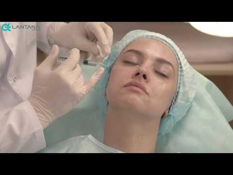 Биоревитализация лица гиалуроновой кислотой | OVERAGE meso