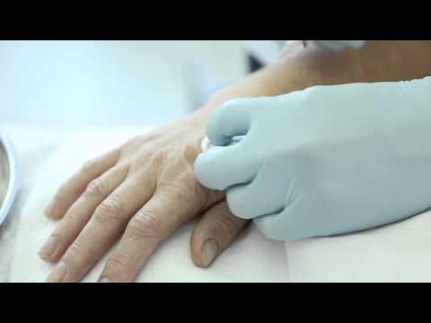 Канюльная биоревитализация кистей рук препаратом ReNova Vita Skin