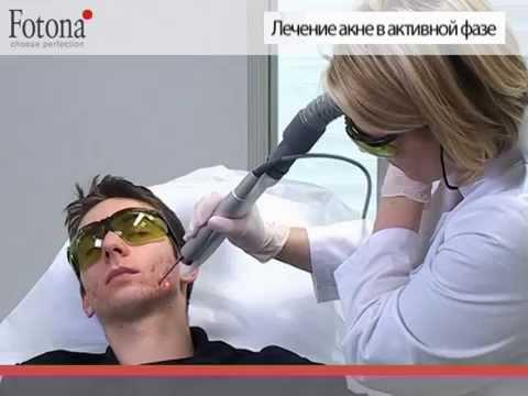 Лазерное лечение акне   FT АКНЕ