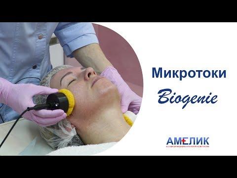 Микротоки Biogenie. Косметолог Йошкар-Ола