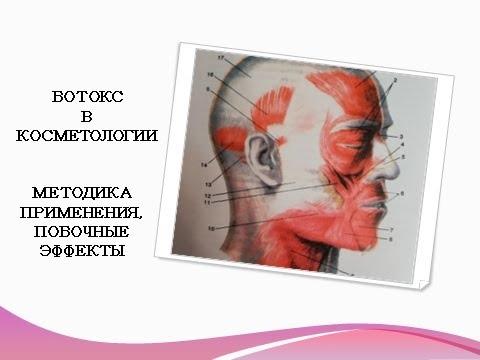Ботокс. Ботулотоксин в косметологии: методика применения, побочные эффекты.