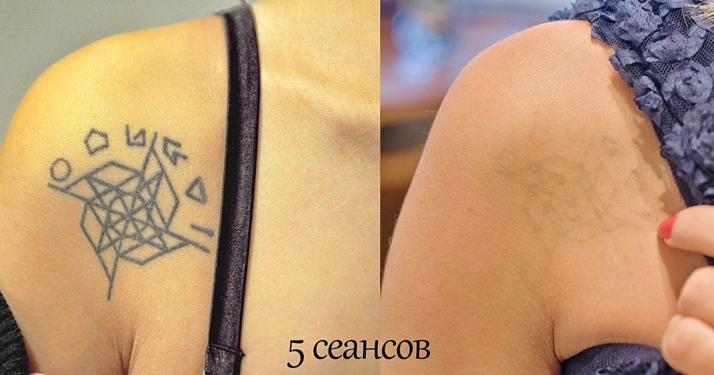 кожа до и после удаления тату лазером