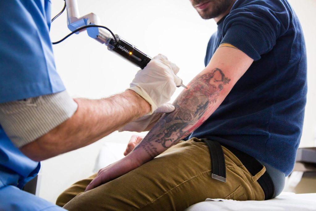 лазер удаляет цветную татуировку