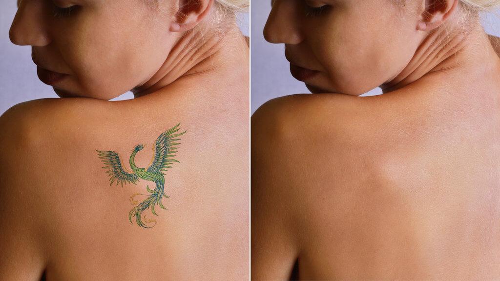 Можно ли полностью удалить татуировку лазером
