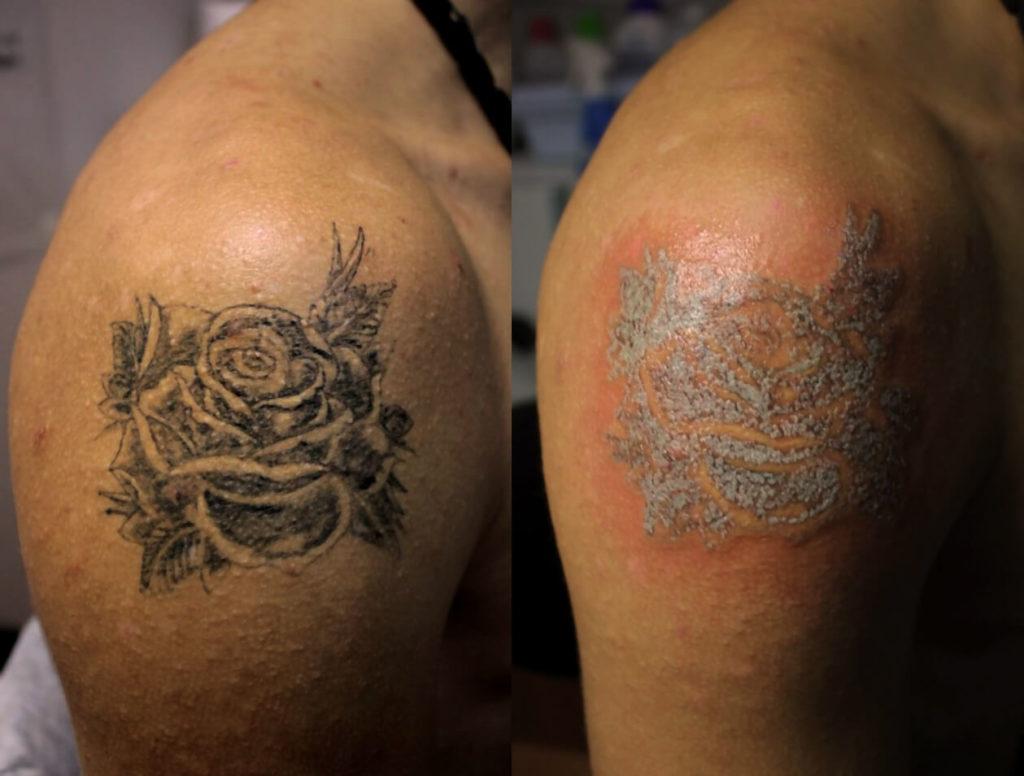 ошибки при удалении татуировки лазером