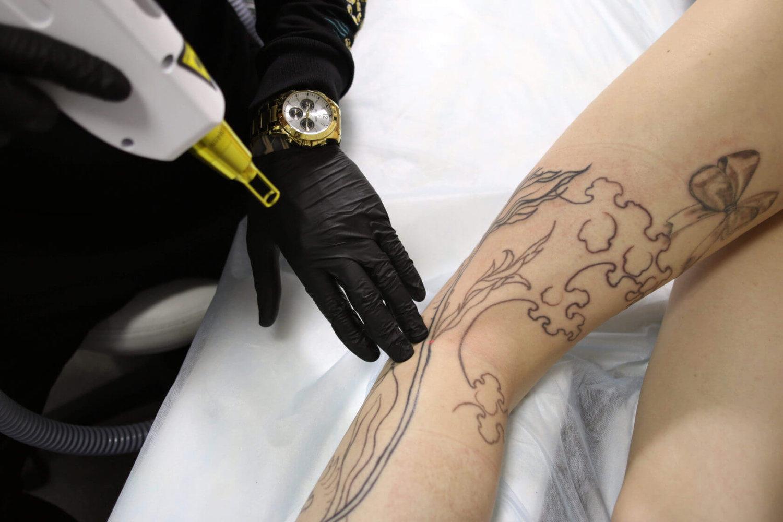 Процесс удаления тату лазером, как выводится пигмент