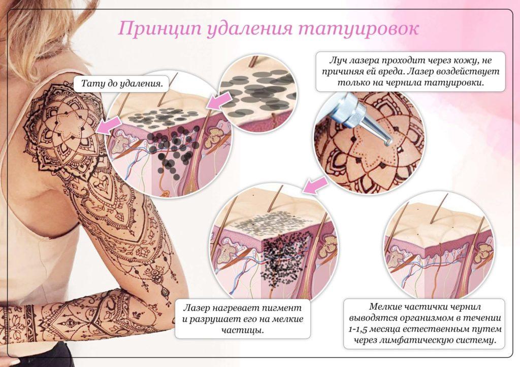 Суть процедуры лазерного удаления тату
