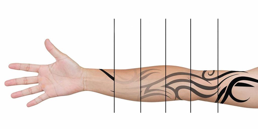 Сведение татуировки лазером