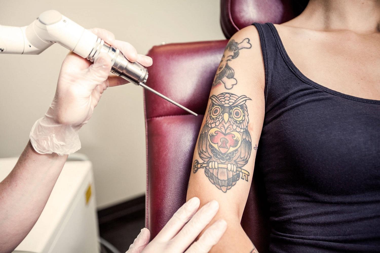 Удаление цветных татуировок лазером
