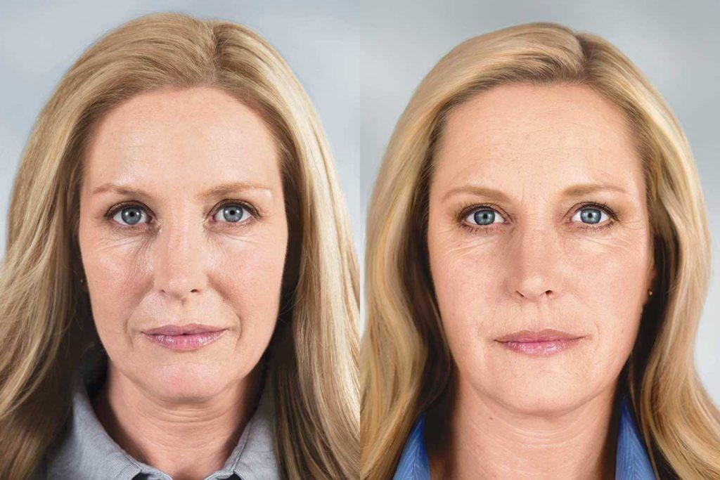 эффект «маски» после ботокса
