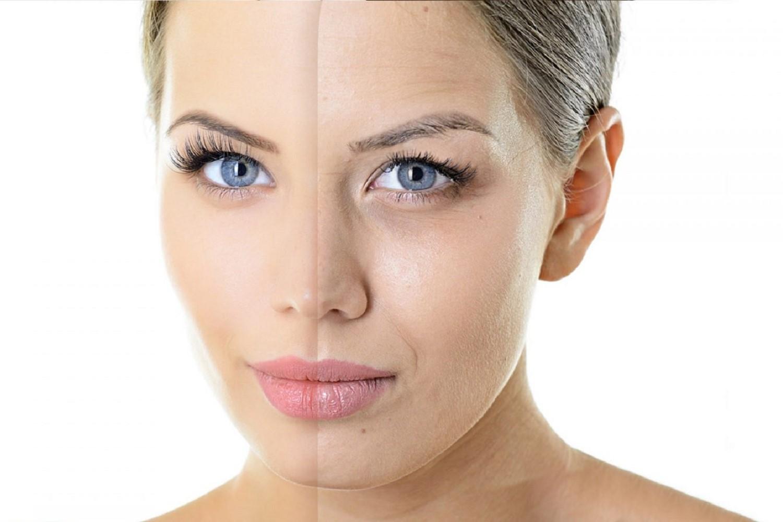 Фракционное лазерное омоложение кожи лица