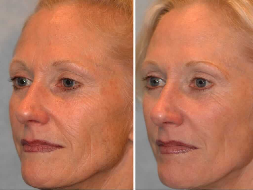 лазерное омоложение кожи