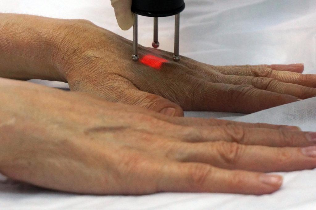 лазерное омоложение рук