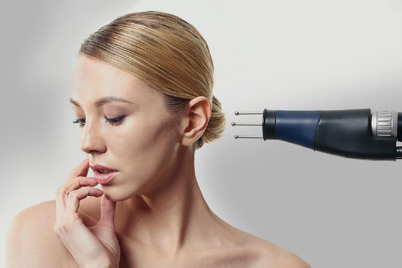 Омоложение кожи лица на лазере MCL31 Dermablate Asclepion