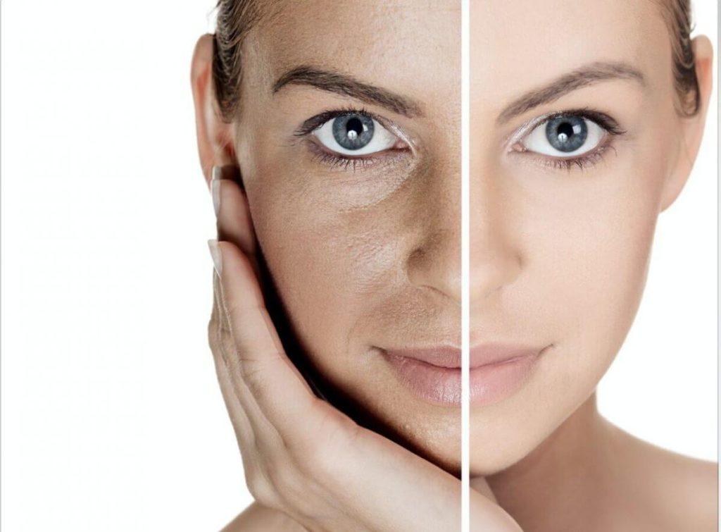 эффект разглаживания морщин