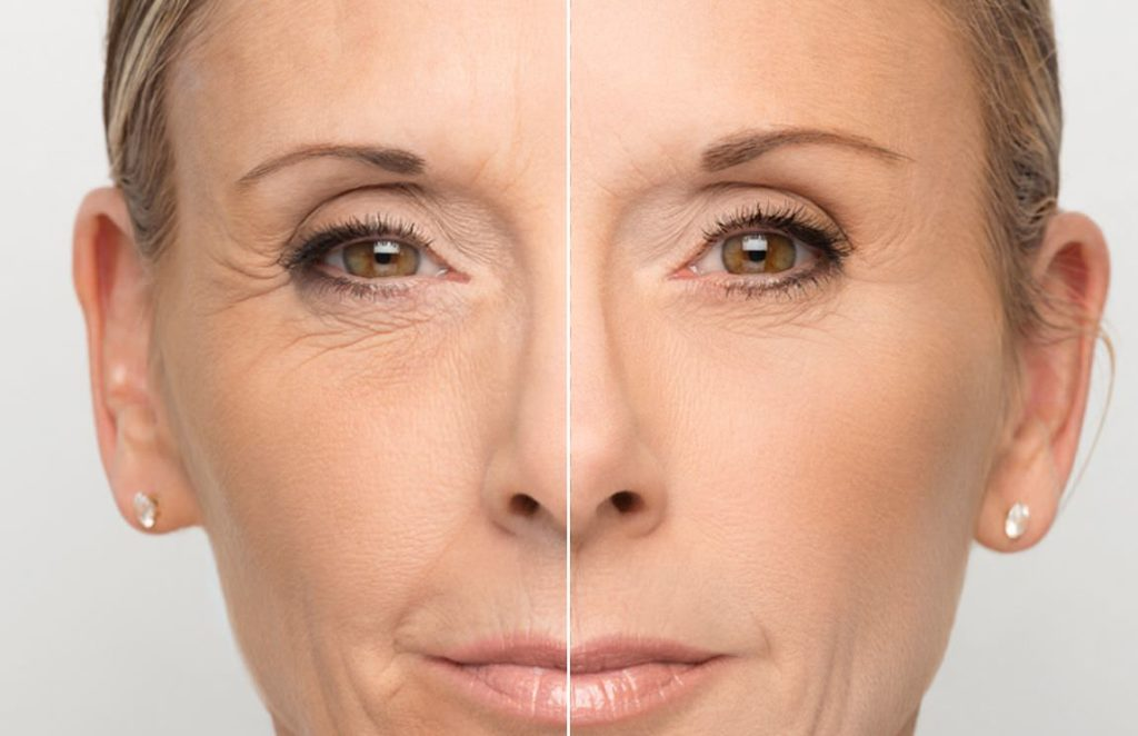 Биоревитализация вокруг глаз