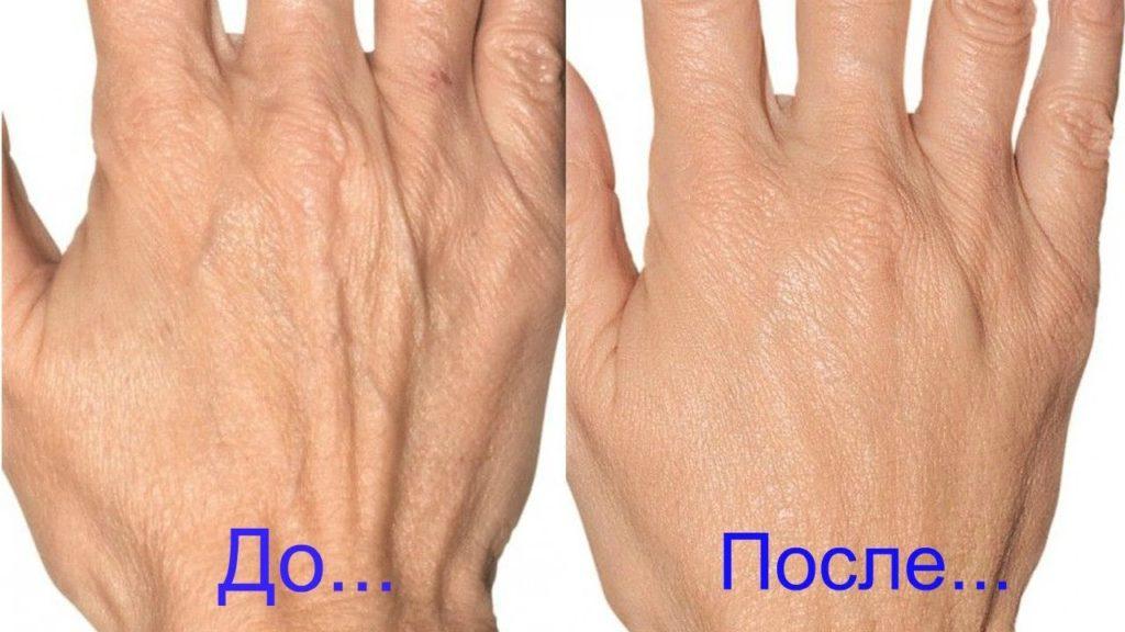 Введение гиалуронки в кисти рук