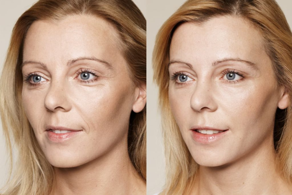 Контурная пластика лица до и после