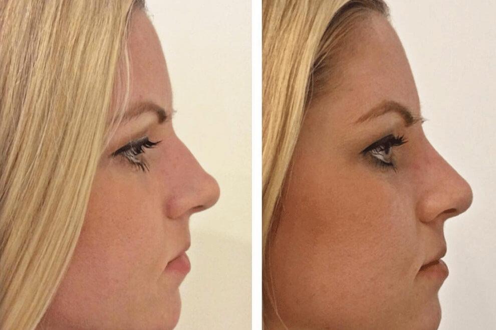 Филлеры в нос до и после