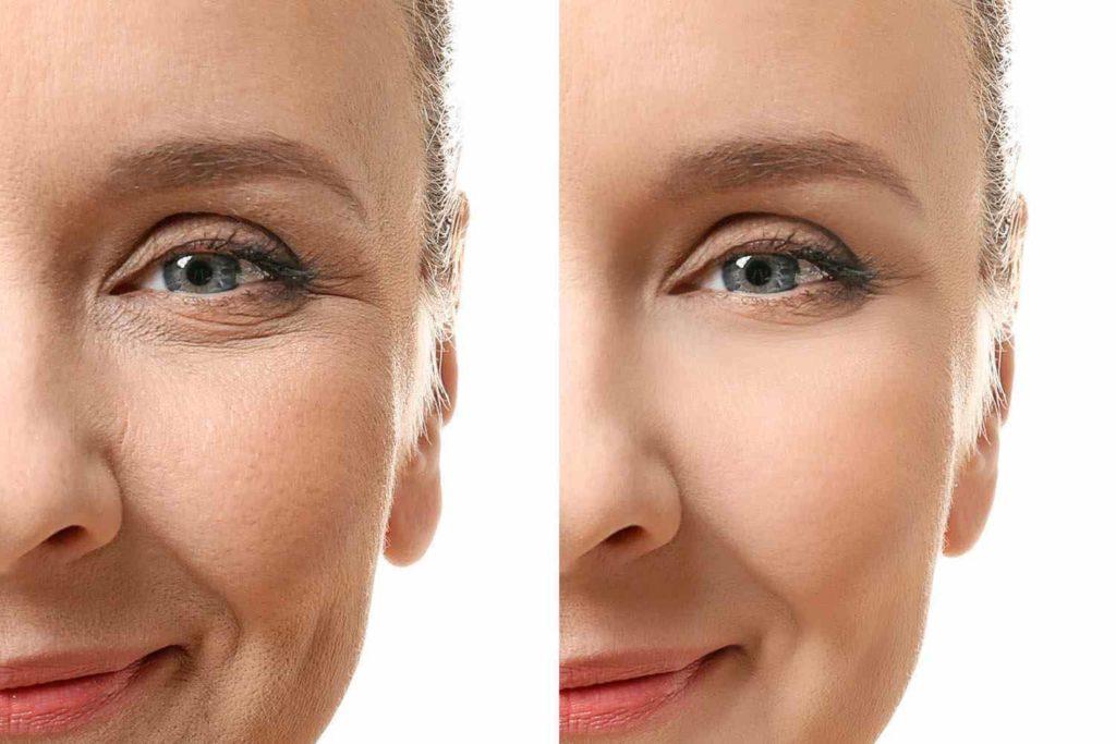 Носослезка фото до и после