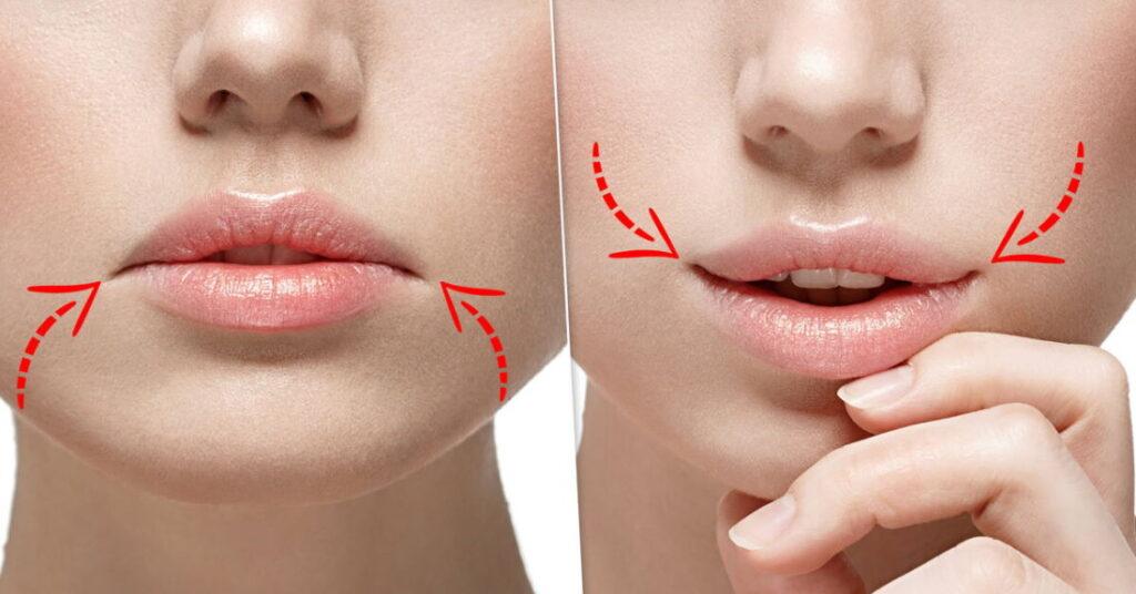 Опущение уголков губ