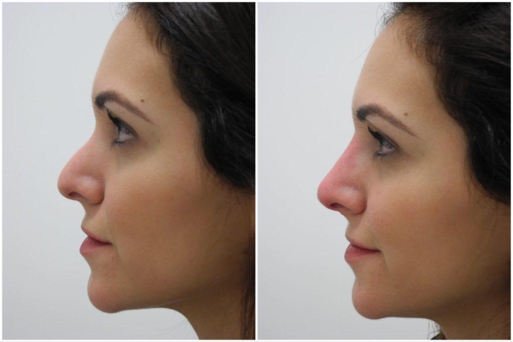 Ринопластика носа филлером