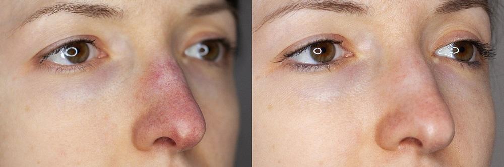 Эффект после лазерного лечения