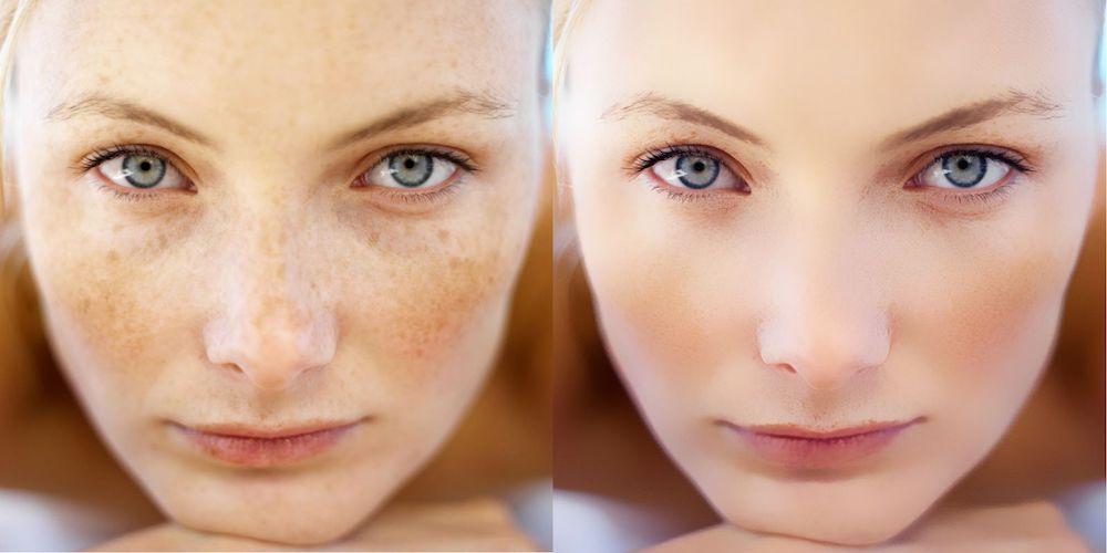 Результат до и после лазерного удаления пигментации