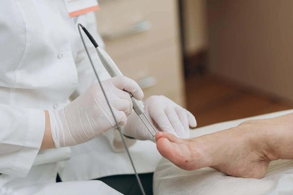 Устранение грибка ногтей лазером СО2