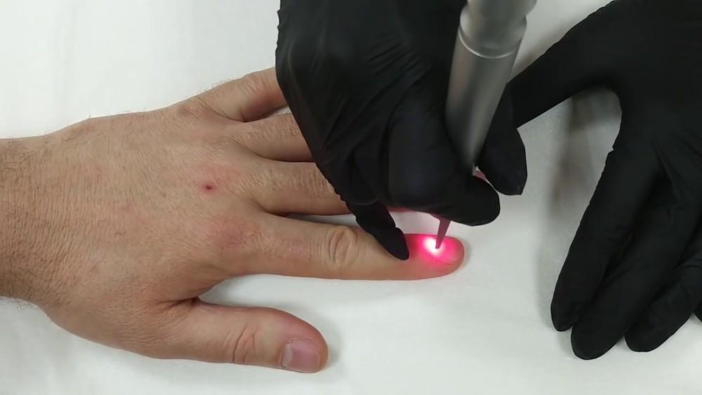 Лечение грибка лазером СО2
