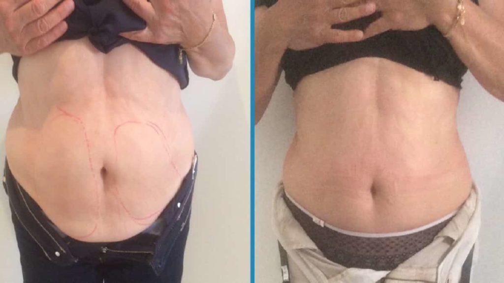 До и после процедуры криолиза